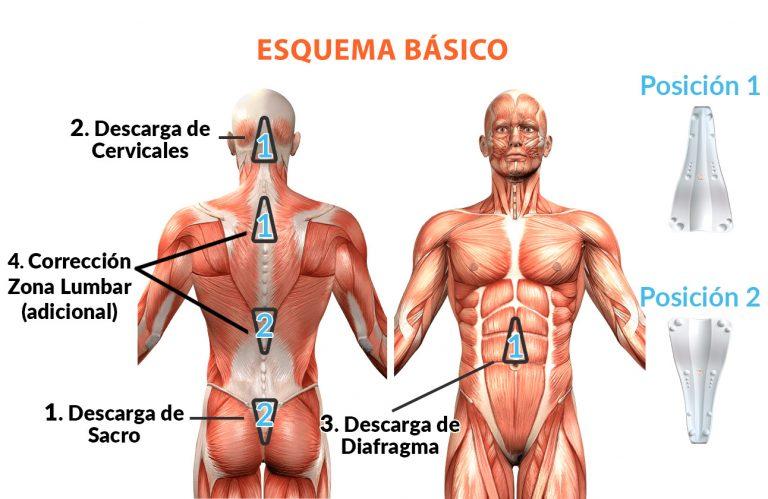 Esquema básico de tratamiento SACRUS