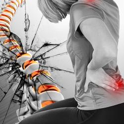 Hernia Discal: principal signo de que tu columna se está destruyendo