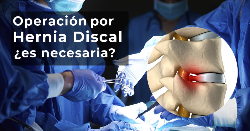 La operación por hernia discal es necesaria?
