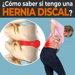 ¿Cómo saber si tengo una hernias discal?