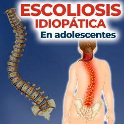 Escoliosis idiopática (En adolescentes)