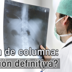 Usa Cordus y Sacrus para tratar hernias discales y evita una cirugía