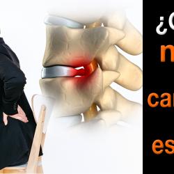 ¿Cómo prevenir o tratar el desgaste de los discos de cartílago en la columna?